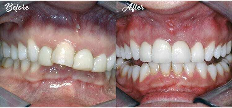 Four crowns crown lengthening before and after