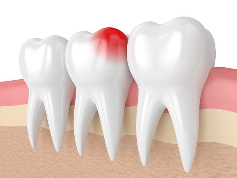 Tooth pain in Oakville