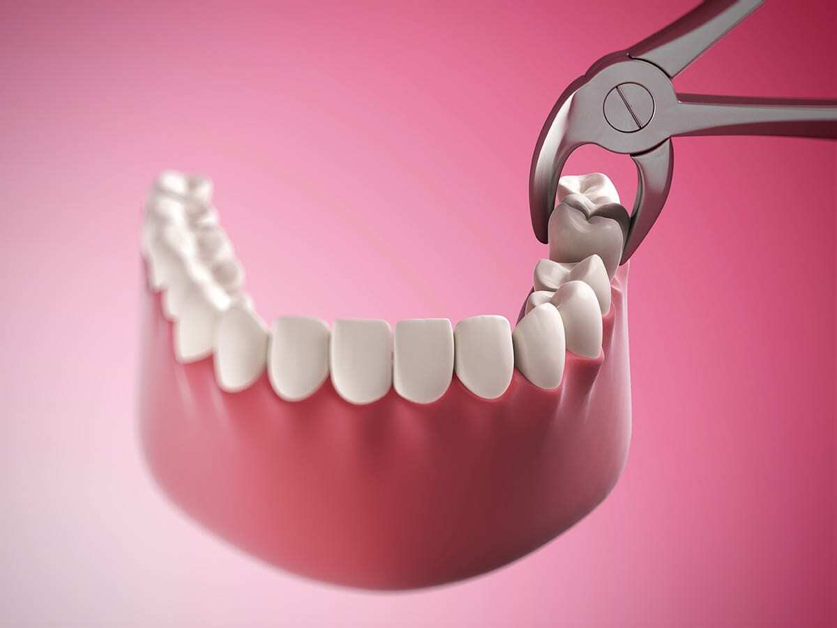 Tooth extraction in Oakville