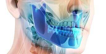 jawbone-density