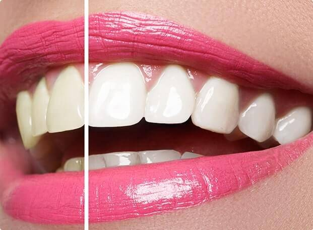 Smile with teeth whitening