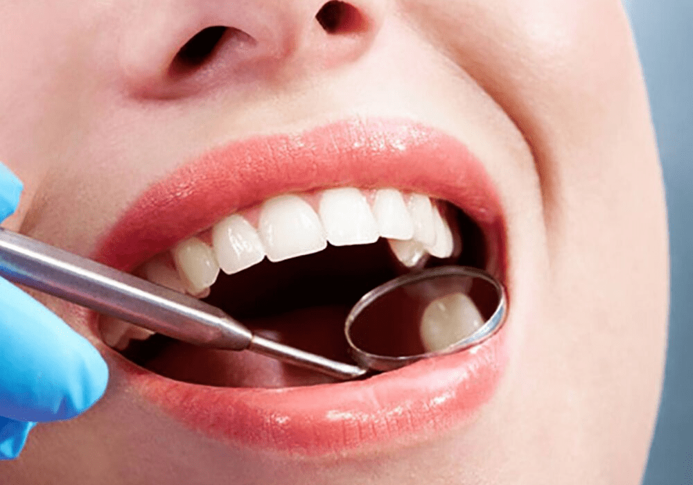 Dental Cleaning Prevents Cavities