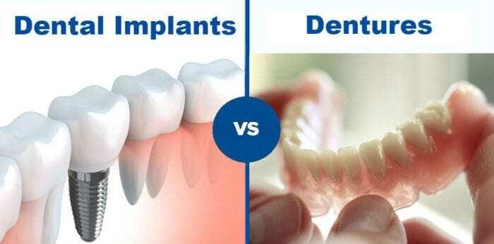 Dental Implants or Partial Dentures