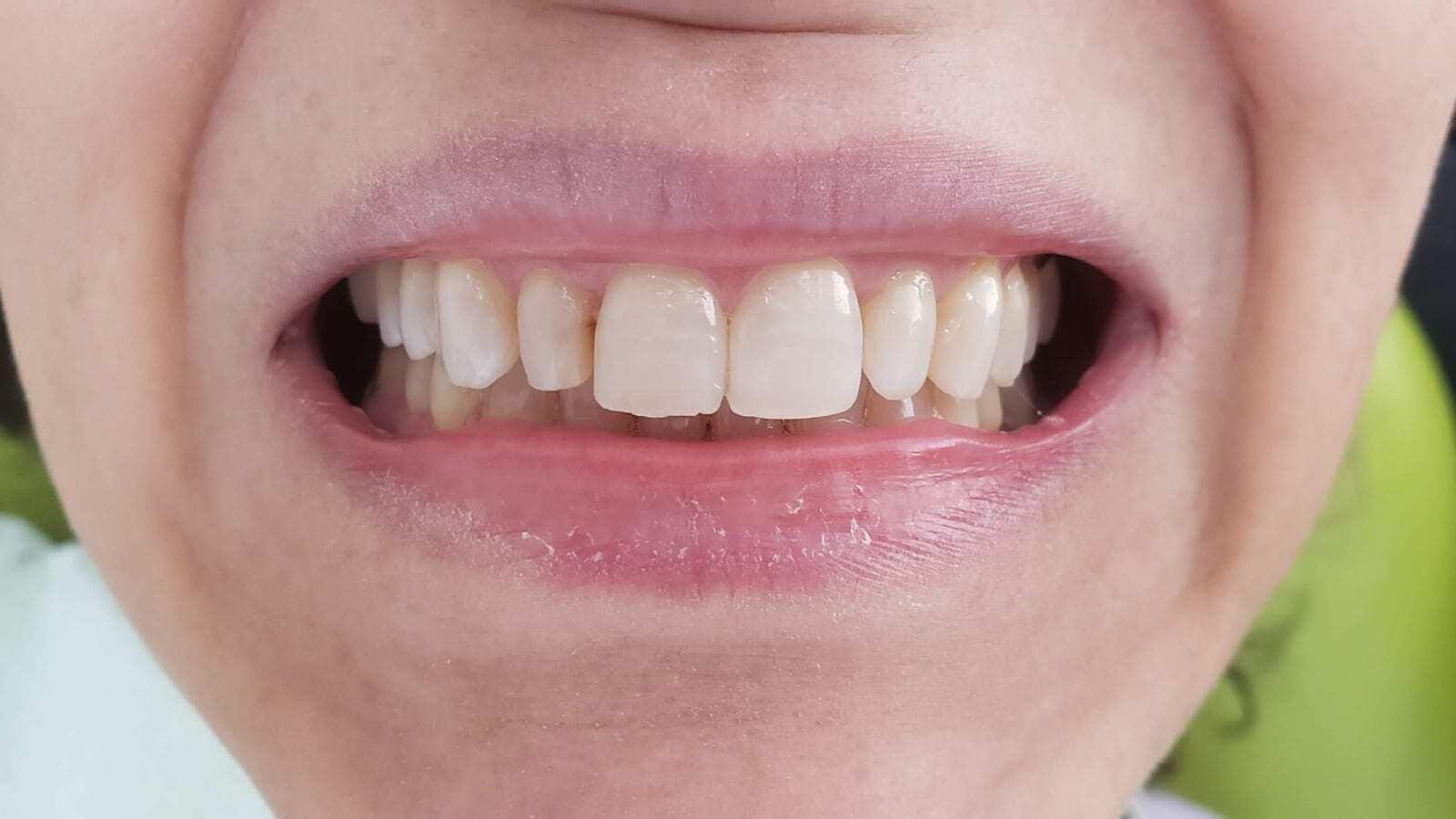 dental_veneers_before