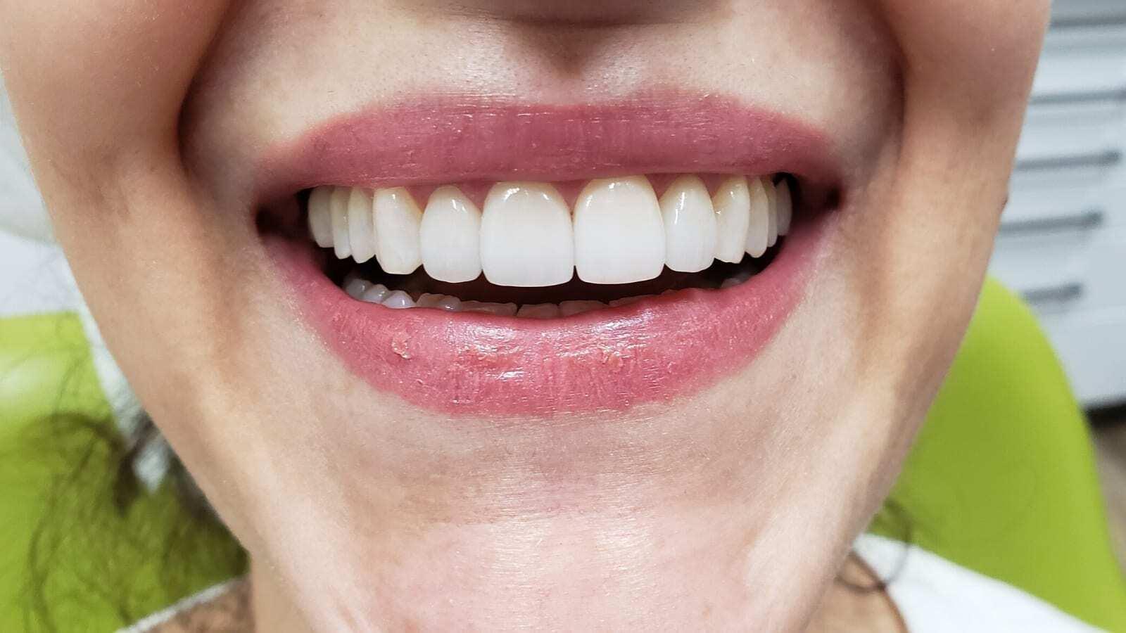 dental_veneers_after
