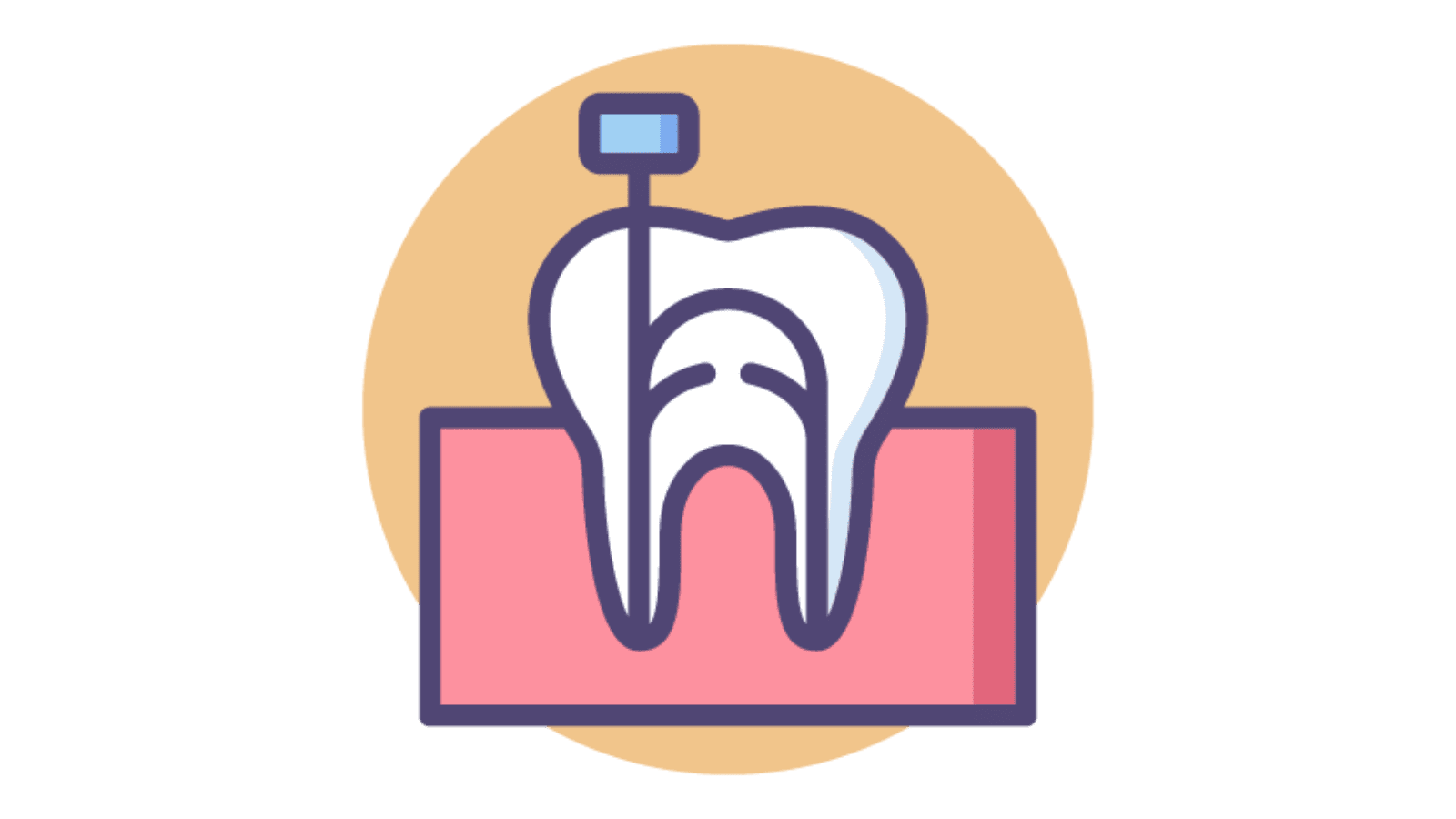 root canal clipart